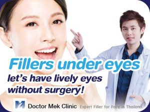 Fillers under eyes lets have lively eyes without surgery