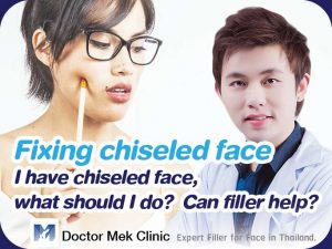 Fixing chiseled face