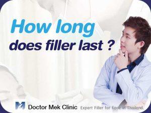 How long does filler last