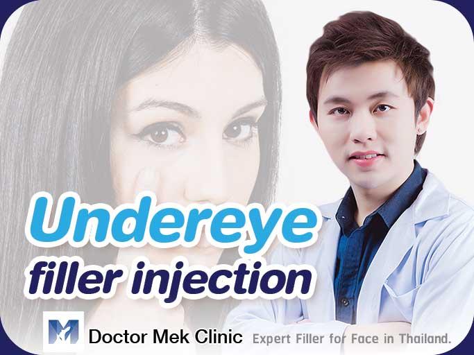 Undereye filler injection