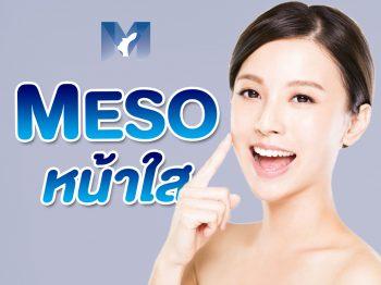 เมโส หน้าใส (Meso Therapy) ทรีตเมนต์ ลดปัญหาผิว