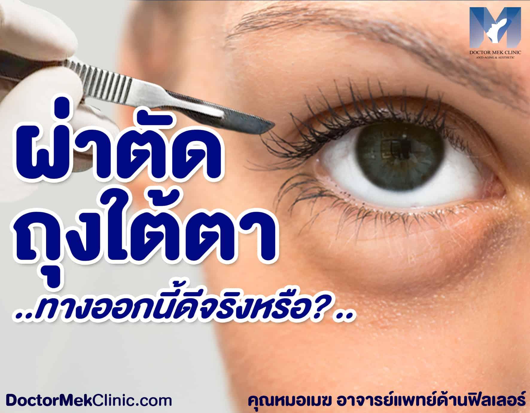 ผ่าตัดถุงใต้ตา