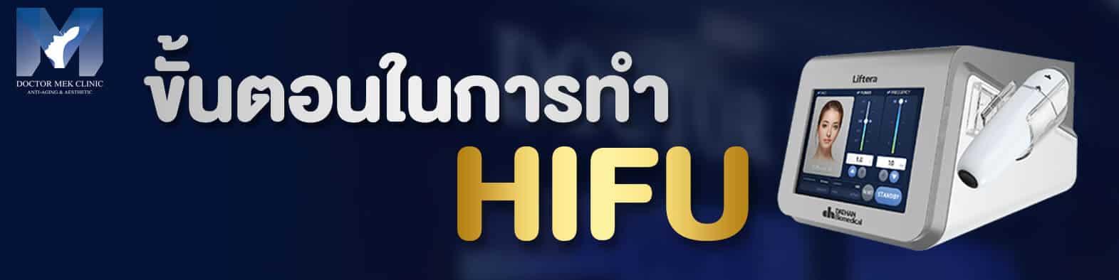 ขั้นตอนในการทำ HIFU ( ไฮฟู่ )